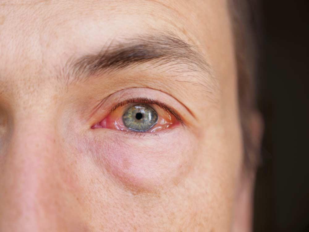 Allergische Konjunktivitis / Bindehautentzündung