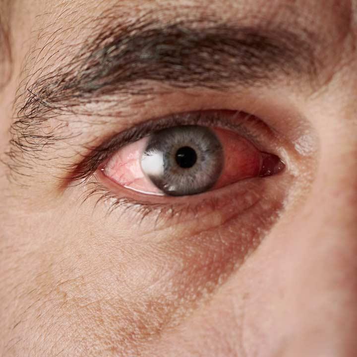 Konjunktivitis / Bindehautentzündung vor Behandlung durch Wiener Augenarzt