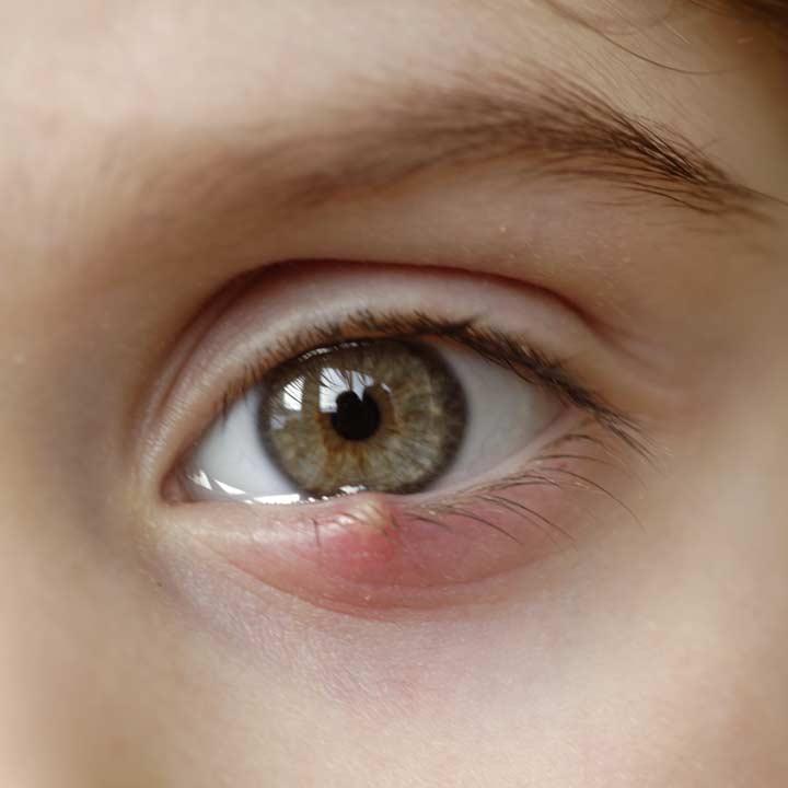 Augenarzt in Wien muss Gerstenkorn / Hordeolum behandeln