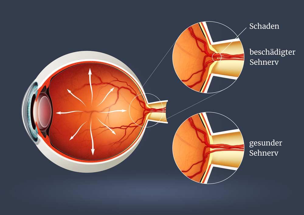 Grüner Star (Glaukom): beschädigter Serhnerv