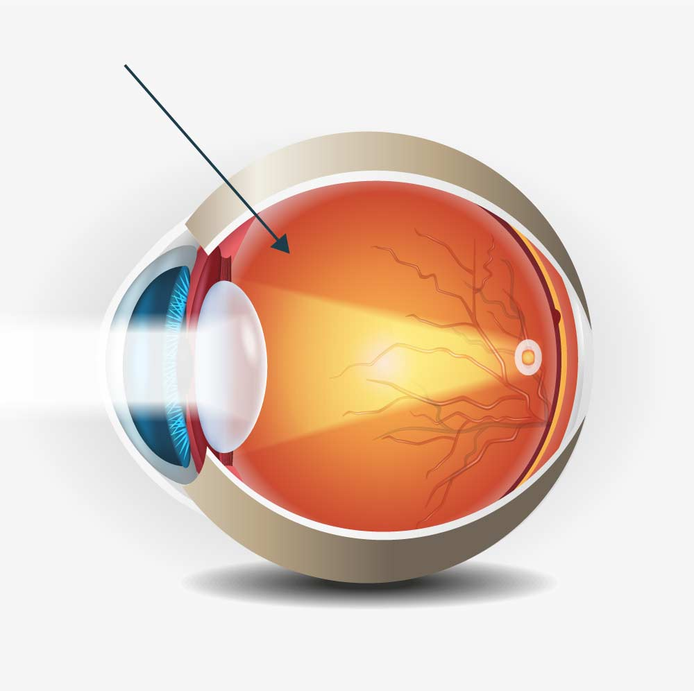 Injektion von Medikamenten ins Auge