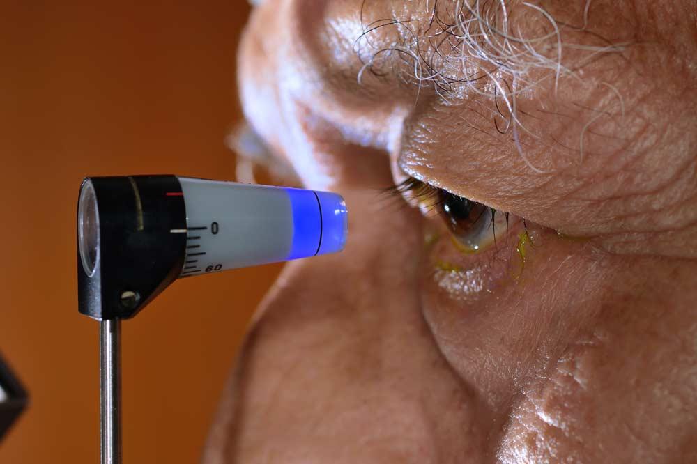 Tonometrie: manuelle Messung des Augendrucks