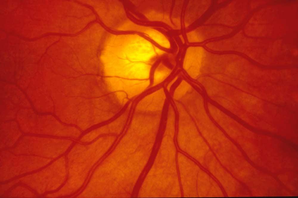 Sehnerv Auge